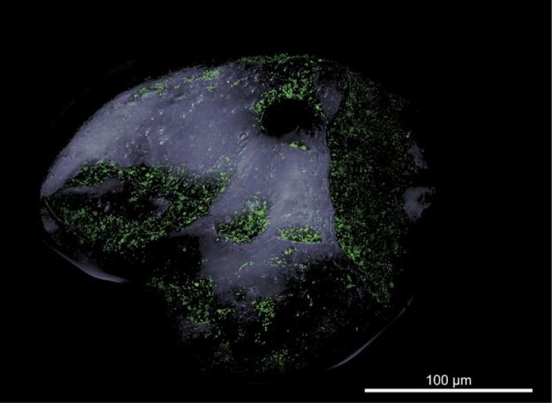 a grain of sand with microbes highlighted in green