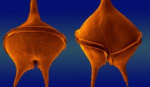 Image of two dinoflagellates seen through a microscope.