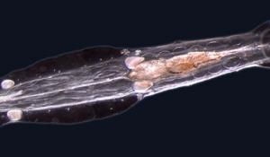 An arrow-worm from the genus Spadella. Alvariño discovered and classified the species Spadella gaetanoi in 1978.